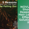 NOVUHAIR Shows 5 Reasons for Hair Loss and Effective Solutions for it